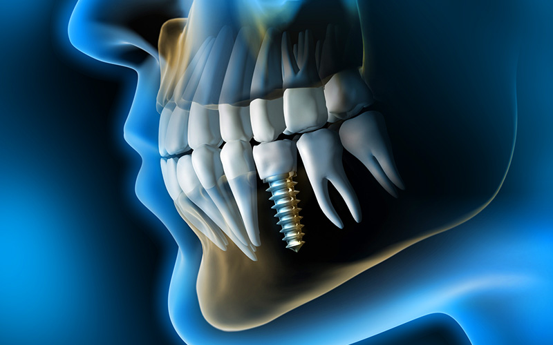 zahn implantologie